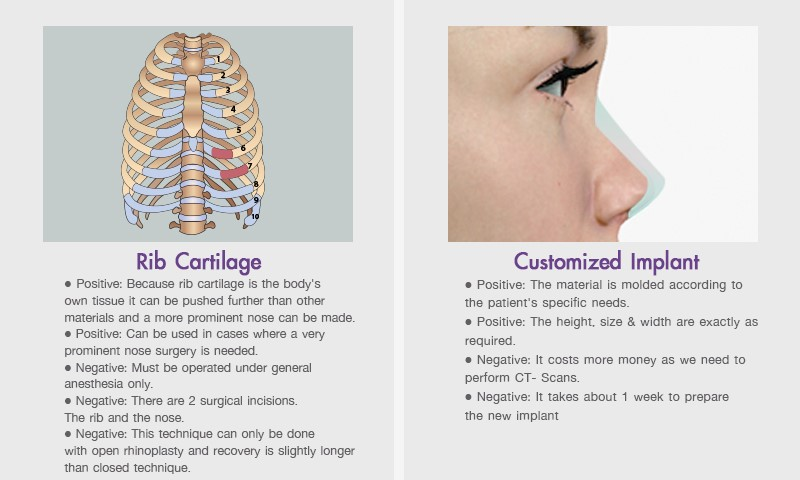 Nose Implant /  Augmentation Rhinoplasty