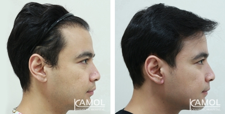 Patient 30 y/o male, shows before and after 12 months of hair transplant