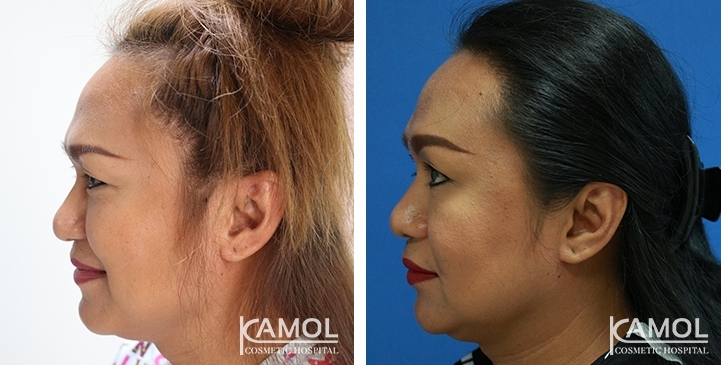 Patient 44 y/o, feminine hairline design, shows before and after 12 months of hair transplant