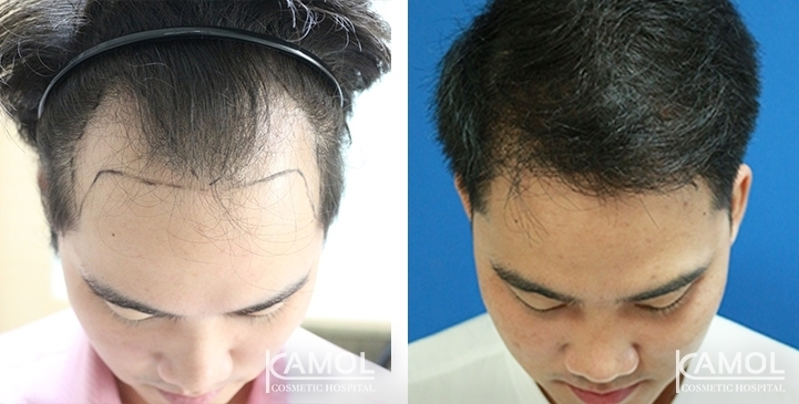 Patient 28 y/o male, shows before and after 24 months of hair transplant