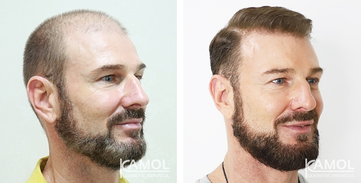 Patient 53 y/o male, shows before and after 15 months of hair transplant and PRP treatment.