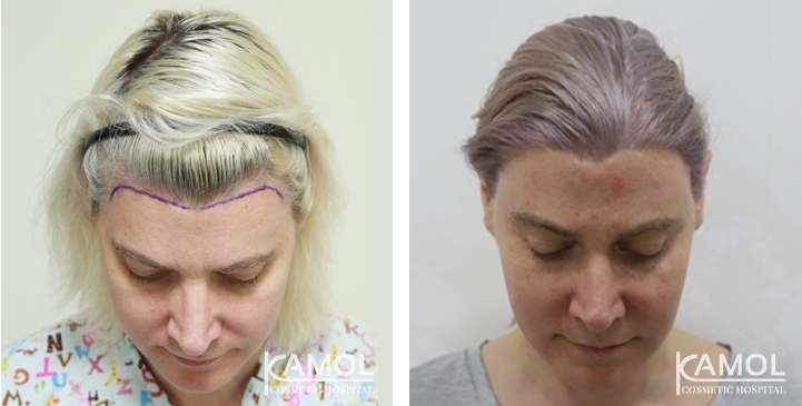 Patient 47 y/o, feminine hairline design, shows before and after 15 months of hair transplant