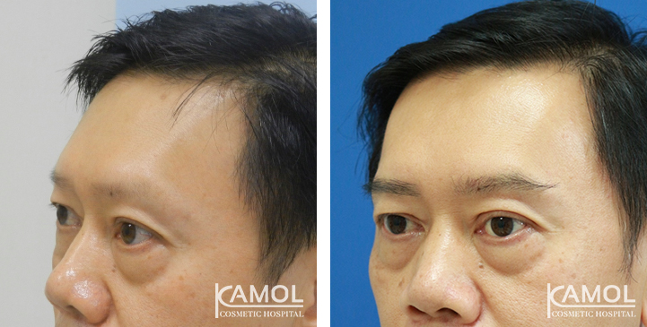 Patient JEH Before and Post Operation FUE eyebrow transplant 1 years of 670 follicular unit grafts with one session of hair PRP.