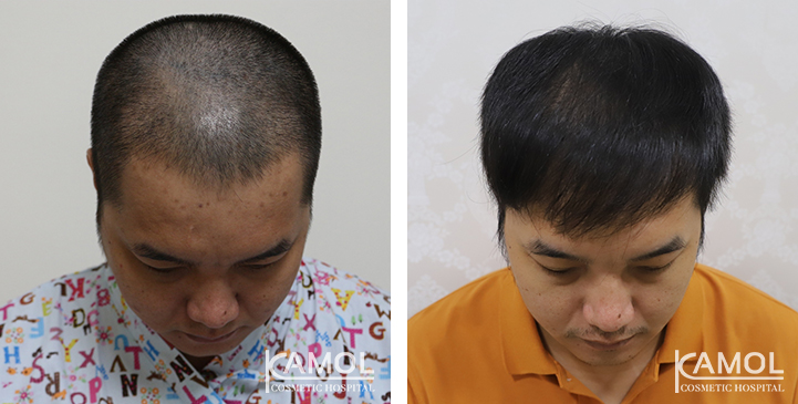 Patient KA, Before and Post-Operation FUE technique 3 years of 1,800 grafts at forelock