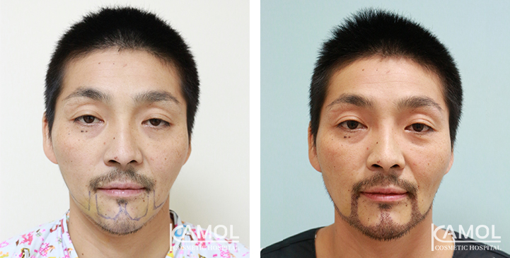 Patient AA, Before and Post-Operation 1 month of Beard, Mustache and Side Burns 1,800 grafts