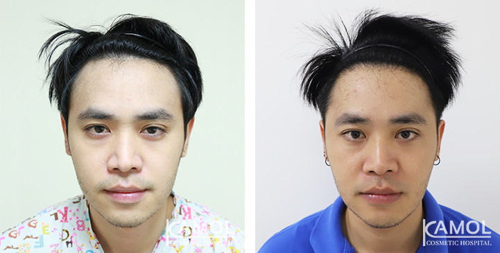 Patient A.S. has a Norwood Class II pattern of hair loss. He has black, straight hair. Results after 2 years single hair transplant of 2,034 follicular unit grafts.