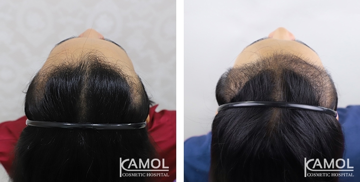 Patient TLE has a Norwood Class II pattern of hair loss. Feminine Hairline, Hair transplant of 2,850 follicular unit grafts.