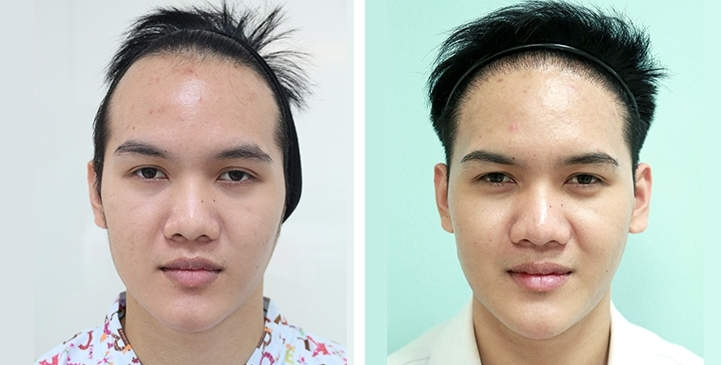 Patient TEA. has a Norwood Class II pattern of hair loss. He has black, straight hair. Results after 2 years single hair transplant of 3,500 follicular unit grafts.