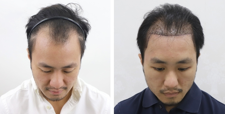 Patient JES. Female to Male transition, has a Norwood Class II pattern of hair loss. from taking male hormone, hair transplant of 3,500 follicular unit grafts.