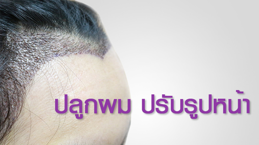 Hairline Design in Hair Transplant