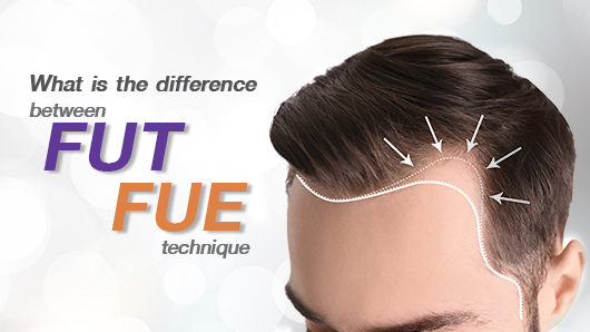 Strip Fut Hair Transpalnt (FUT) and Follicular Unit Extraction (FUE)