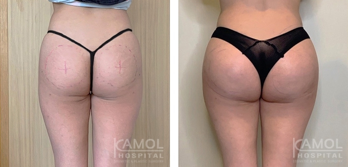 Buttock Augmentation 400 CC