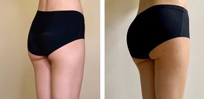 Buttock Augmentation 300 CC