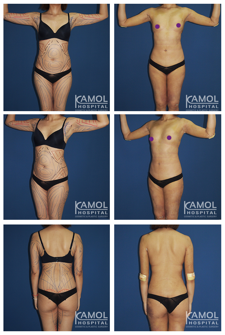 Liposuction, Liposuction photo before and after