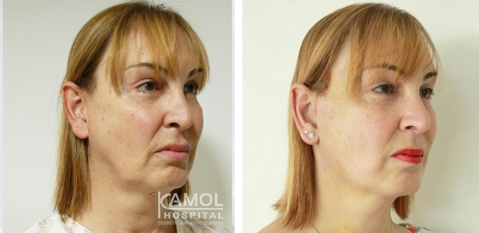 Before and After Full face lift, Neck lift