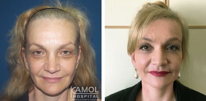 Before and After Face lift, Full face lift
