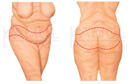 Shows the incision line for belt lipectomy or truncal body.