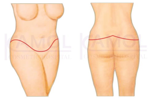Shows the incision scar for belt lipectomy or truncal body.
