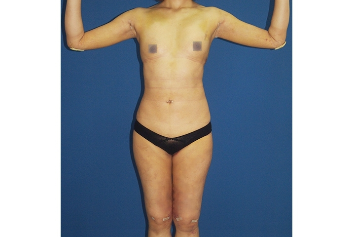 2 weeks After Body contouring, front view
