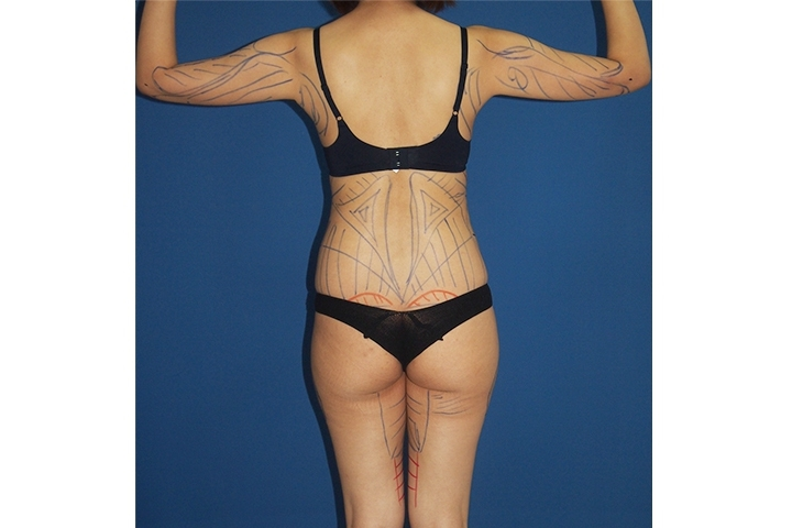 Before Liposuction, back view