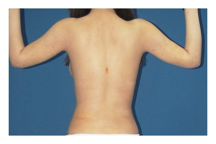 After  Arm and body Liposuction, back view