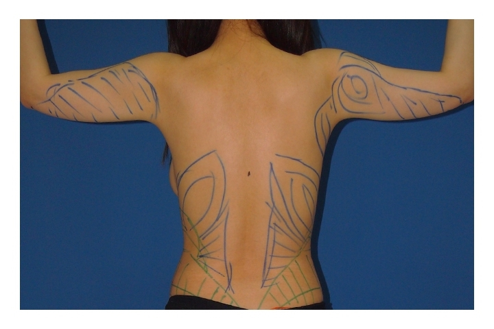 Before Arm and body Liposuction, back  view