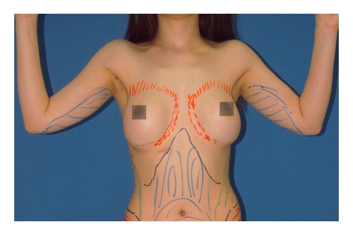 Before Arm and body Liposuction, front view