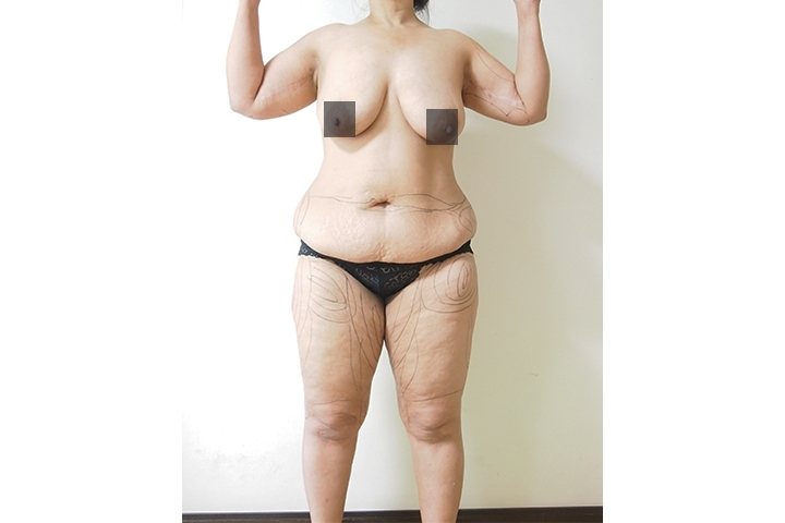 Before liposuction, front view
