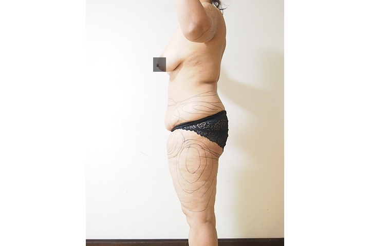 Before liposuction, left side view