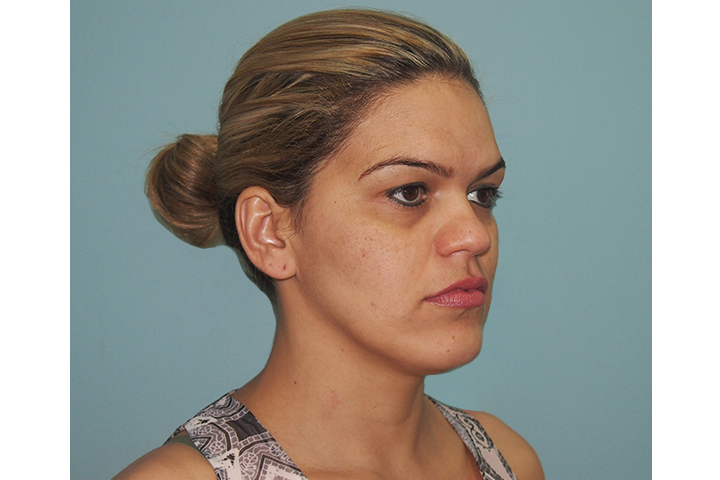 12 months before surgery by Chin contouring,Forehead Contouring, Revision Rhinoplasty, Eye Brow Lift, Cheek Augmentation