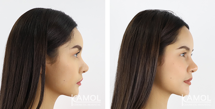 Before and After Forehead Augmentation,Forehead Augmentation Thailand