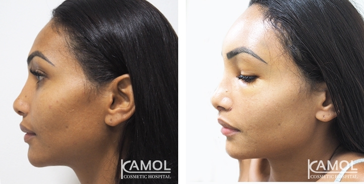 Forehead shaving and Forehead Augmentation