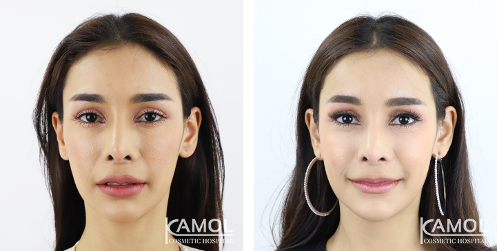 Forehead Augmentation