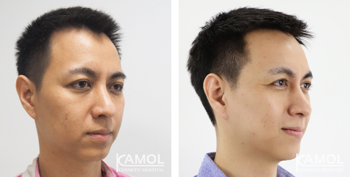 Before and After Temporal Brows Lift
