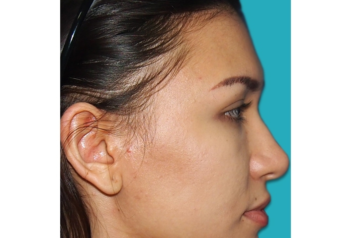 Before cheekbone augmentation, right side  view