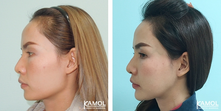 Before and After Jaw Reduction