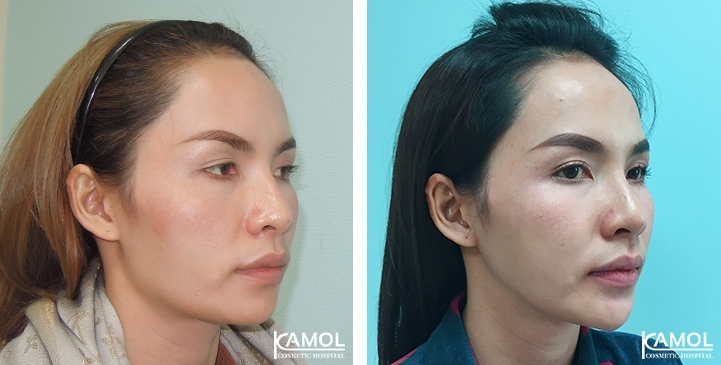 Before and After Cheekbone Reduction / Zygoma reduction / Chin Reduction