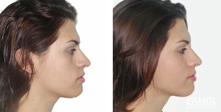 Before and After Cheekbone Augmentation,Cheek augmentation before after