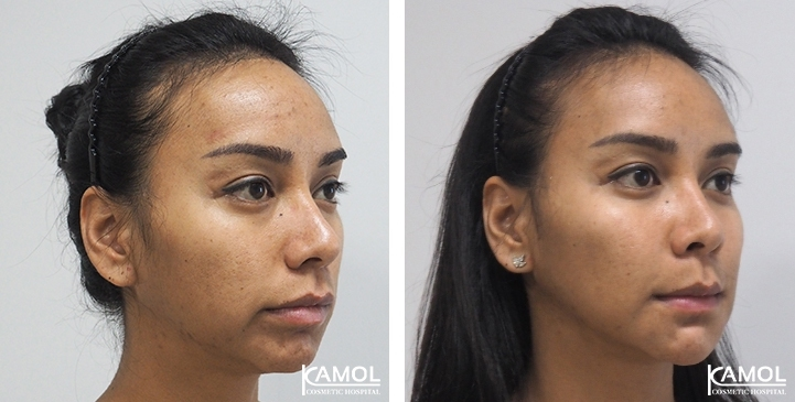 Before and After Cheekbone Augmentation