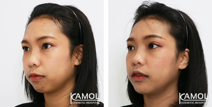 Before and After Chin Augmentation, Chin Implant