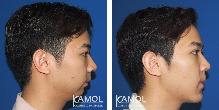 Before and After Genitoplasty