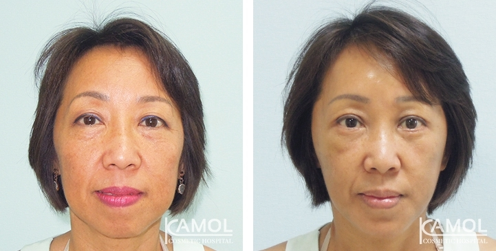 Before & After Aging Upper Blepharoplasty, Upper Eyelid Surgery