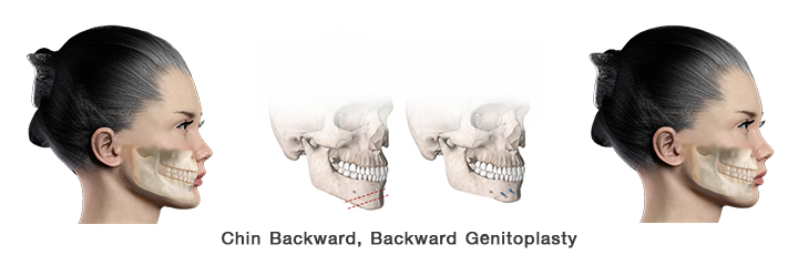 Chin backward surgery