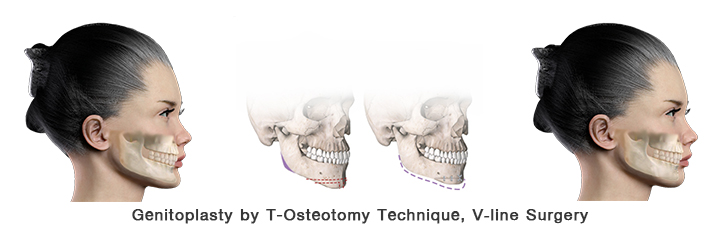 Chin reduction by T-Osteotomy, V-Line surgery