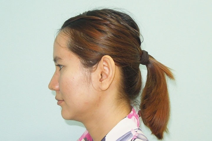 Before Ear Surgery, left side view