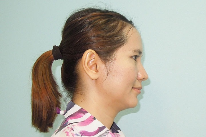 >Before Ear Surgery, right side view