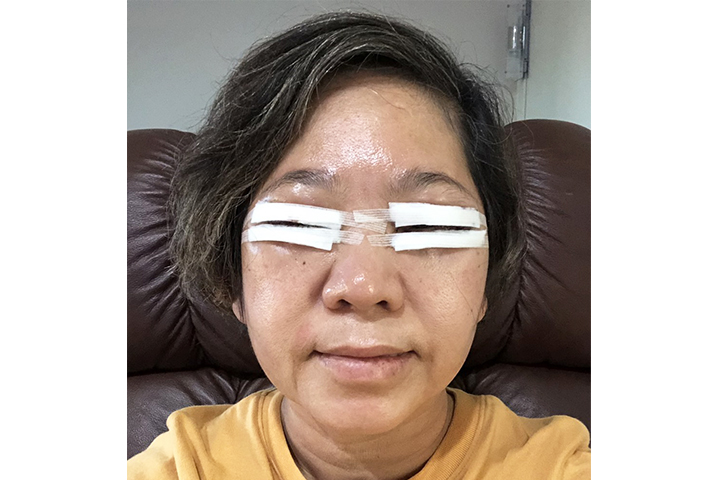 After 1 day Upper / Lower Blepharoplasty