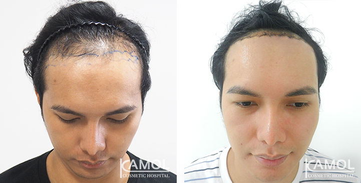 Hairline lowering Surgery