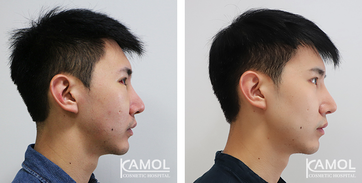 Jaw Augmentation