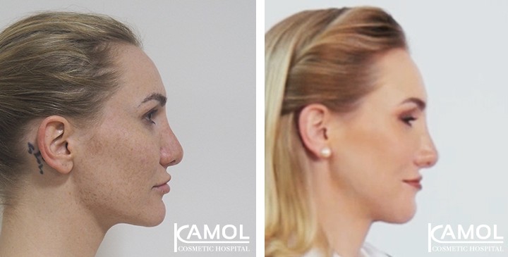 Before and After 1 month surgery, Jaw to Chin Reduction, Division Rhinoplasty